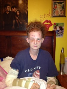 Nicole - two weeks after her boyfriend attacked her with a baseball bat